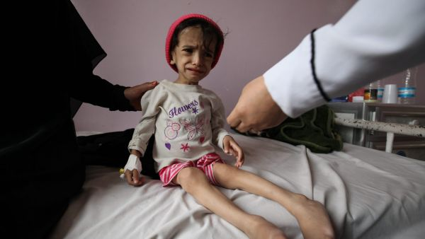 On 30 July 2015, Hanadi, 2 years and 8 months old, and weighs a paltry 7 kilograms. She is malnourished, weak and can't walk. She is admitted at Sabeen hospital in Yemen's capital, Sana'a for treatment. Ali Hanadi Hussein is 2 years and 8 months old, and